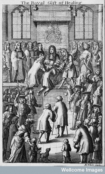 Charles II touching a patient for the king's evil (scrofula)